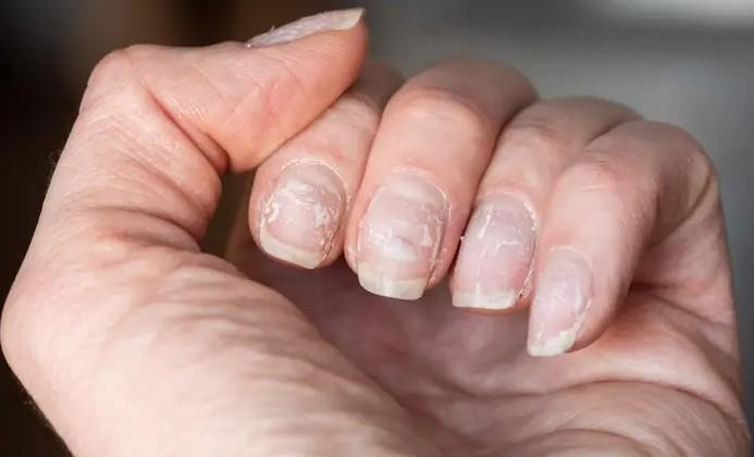 nail damage issues